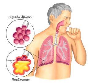 Бронхопневмония
