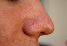 Черни точки по кожата