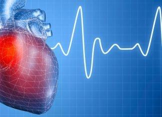 Сърцебиене