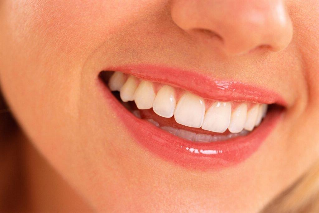 Кървене на венците