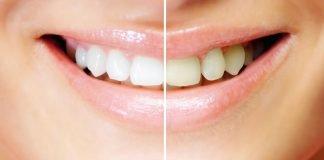 зъбната плака