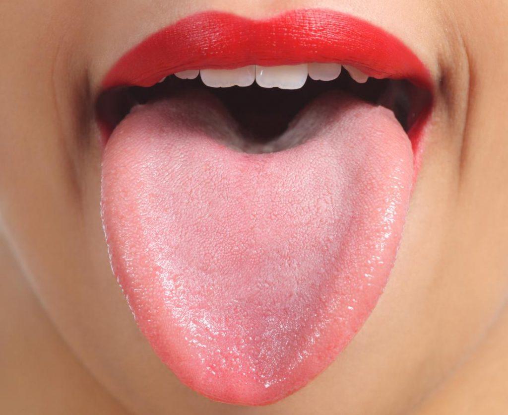 Цветът на езика сигнализира за куп болести